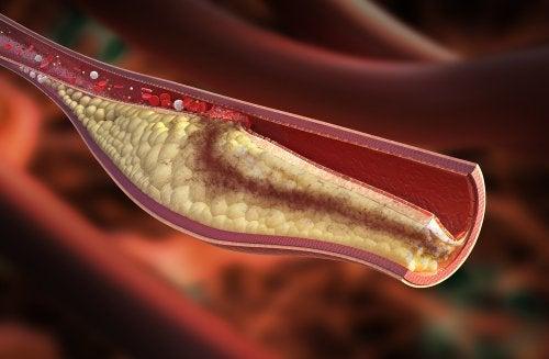 можливі причини артеріосклерозу