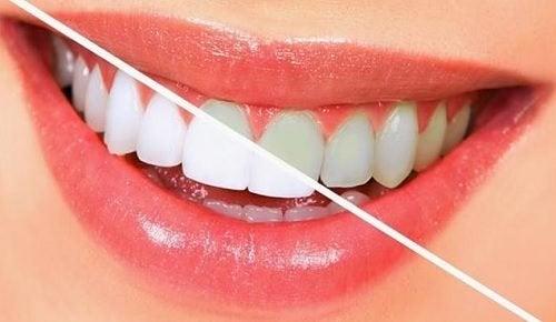 10 продуктів, які відбілюють зуби