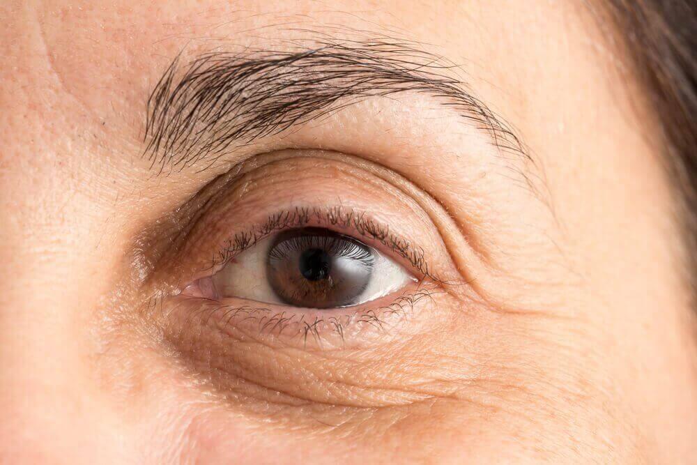 5 засобів, щоб зменшити темні кола під очима