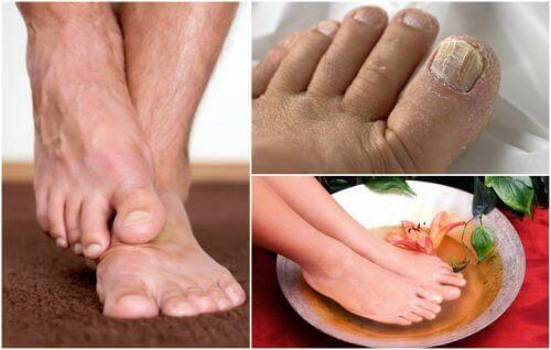 Симптоми грибка стопи: чи є вони у вас?