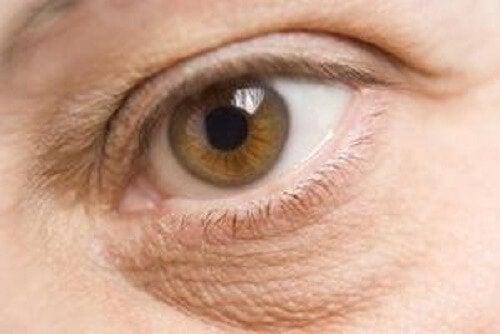 опухлі очі - ознаки дефіциту поживних речовин