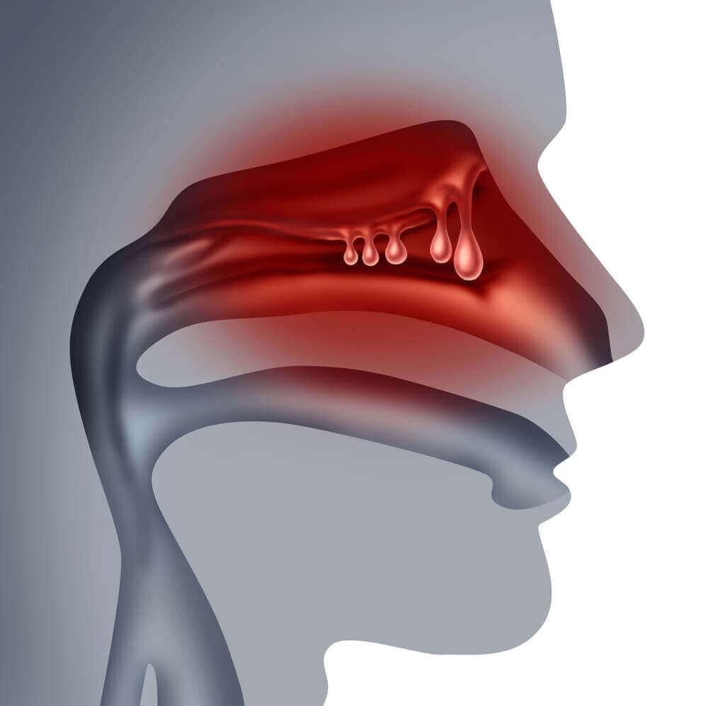 Як лікувати поліпи в носі природним шляхом