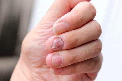 Природні засоби від псоріазу нігтів