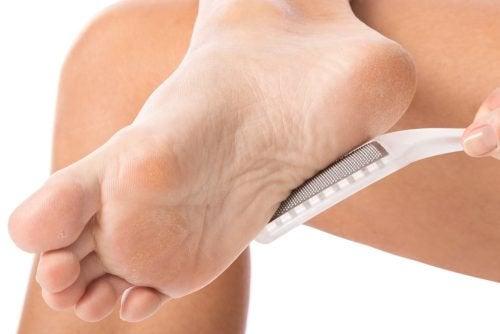 Як усунути затвердіння на шкірі природним шляхом?