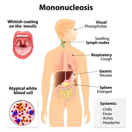 інфекційний мононуклеоз