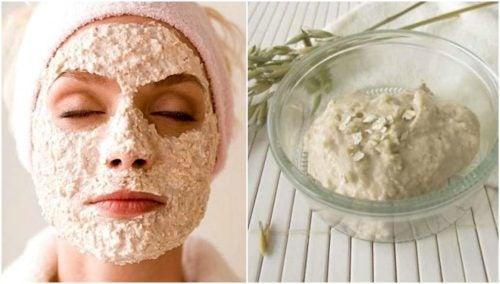 Домашня йогуртова маска проти вугрів