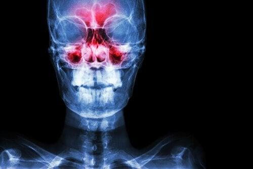 як позбутися симптомів синуситу