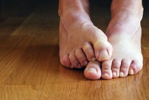 як можна підхопити грибкове захворювання ніг