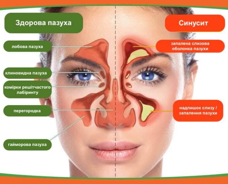 Симптоми синуситу: від розвитку до діагностики