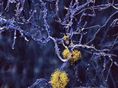 Типи деменції, не пов'язані із синдромом Альцгеймера
