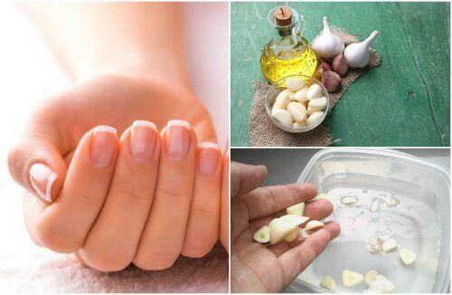 5 домашніх засобів для прискорення росту нігтів