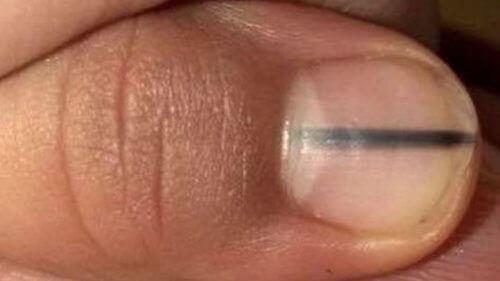 Як чорні лінії на нігтях можуть свідчити про рак