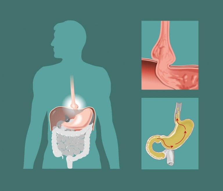 Натуральні лікувальні засоби проти грижі стравохідного отвору діафрагми