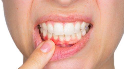 гнійні виділення при зубних інфекціях
