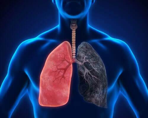 8 симптомів запалення легенів, які не можна ігнорувати
