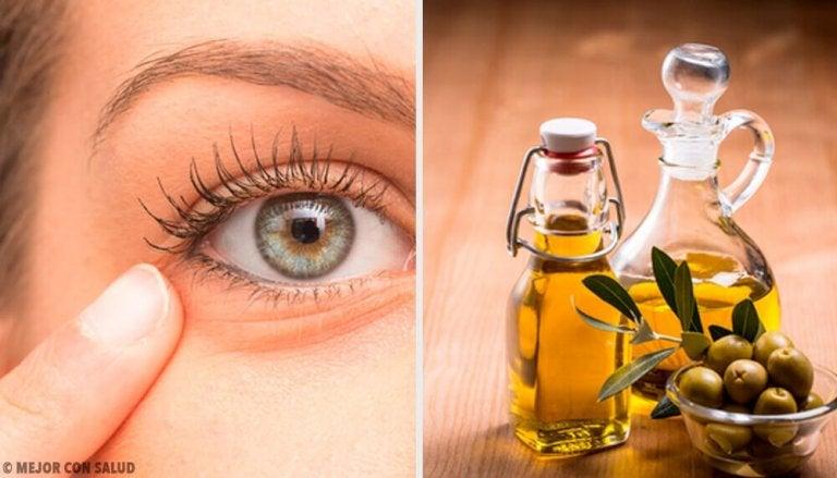 6 натуральних засобів від запалення ока