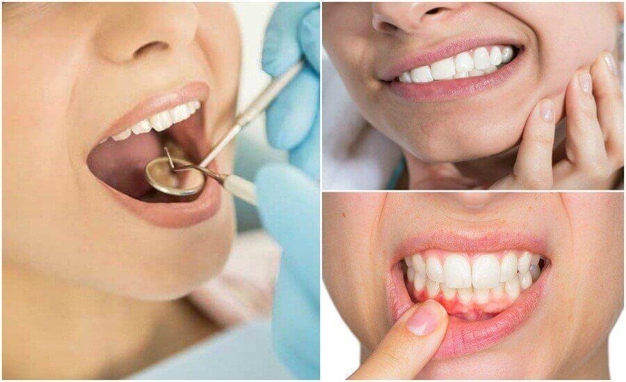 Основні симптоми зубних інфекцій