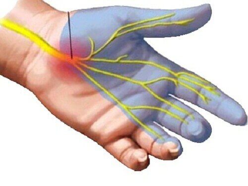 Причини виникнення болю у зап'ястному каналі