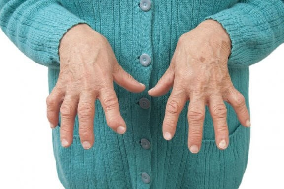 Як лікувати ревматоїдний артрит за допомогою натуральних засобів