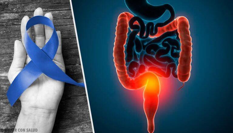 вплив м'яса на мутацію клітин