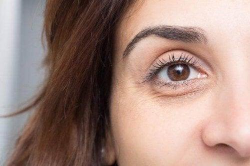Темні кола та набряки під очима: 10 способів, як їм запобігти