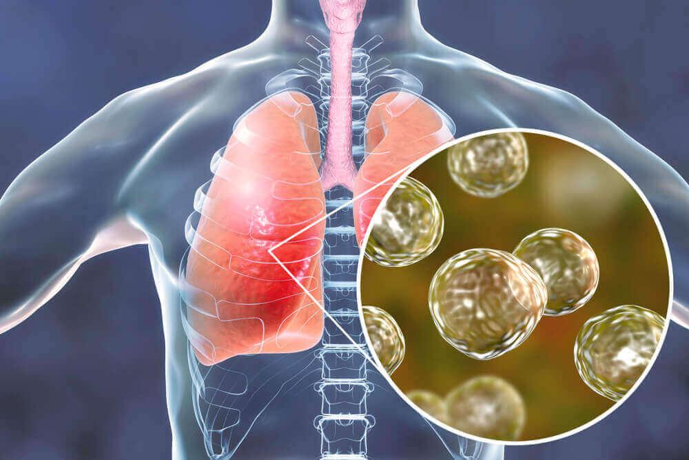 Натуральні засоби від симптомів бластомікозу