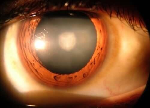 8 фактів, які варто знати про катаракту