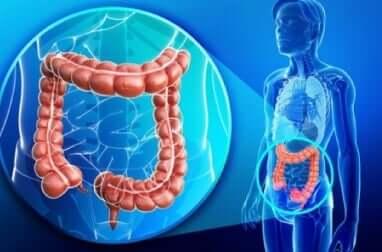 симптоми захворювання товстої кишки