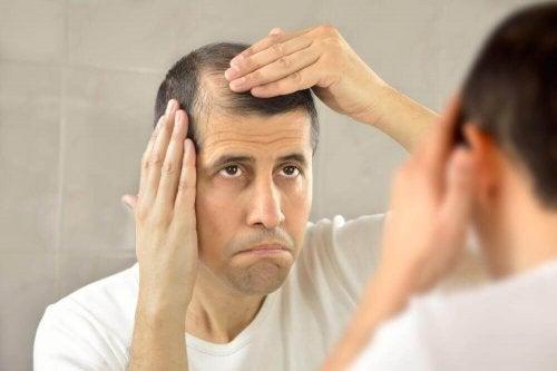 алопеція - випадіння волосся
