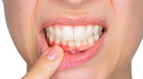 Зубні абсцеси та способи їх лікування