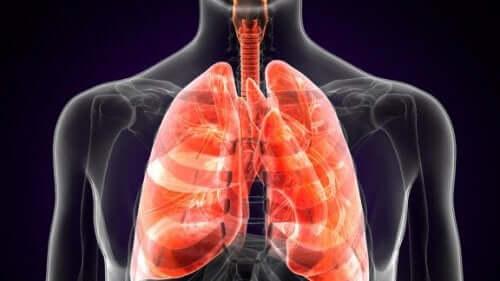 Що таке легенева чума?
