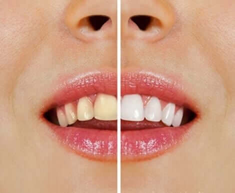 Натуральні засоби для відбілювання зубів