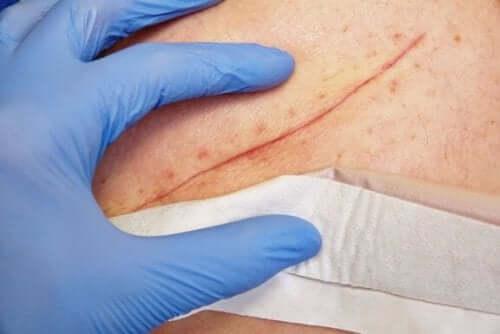 Основні методи закриття ран
