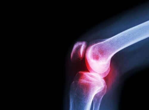 ацеклофенак від ревматоїдного артриту