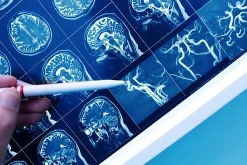 Що таке судинна деменція?