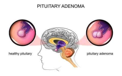 Аденоми гіпофіза: причини та симптоми