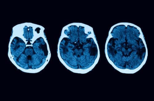Атрофія головного мозку: діагностика та лікування