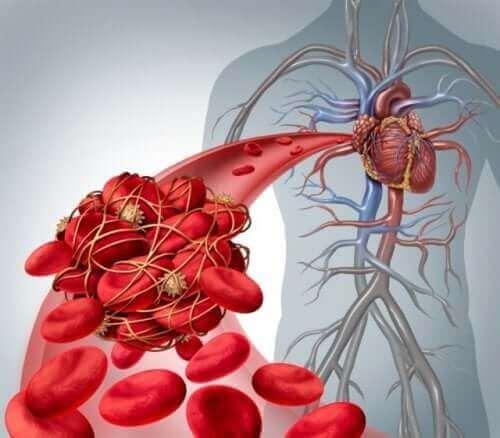 фактори ризику розвитку тромбозу