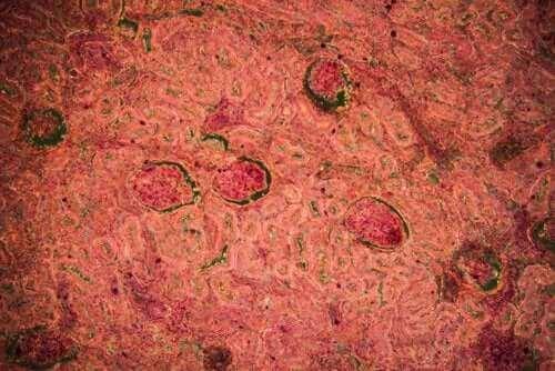 Туберкульоз нирок: діагностика та лікування