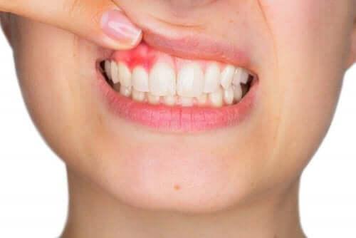 ополіскувач для рота від хвороб ясен