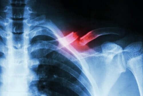 рентген для діагностики стресового перелому