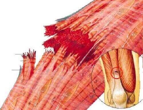 розірвання волокон та травми