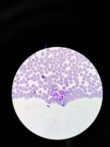 Агранулоцитоз: симптоми та лікування