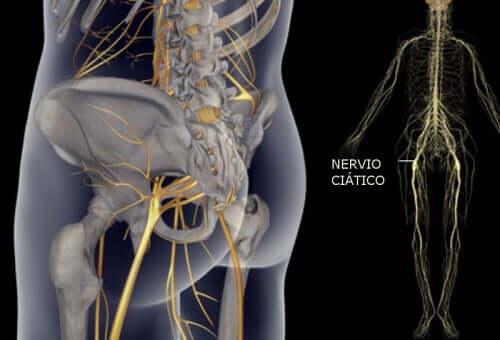 Прості вправи для лікування болю в сідничному нерві