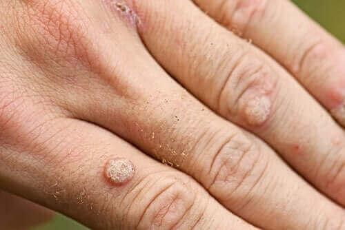 Типи бородавок і способи їх лікування