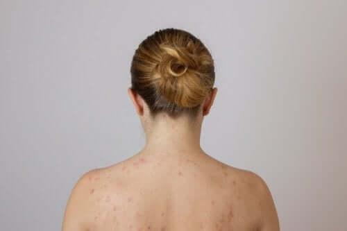 які є жирові грудочки на спині
