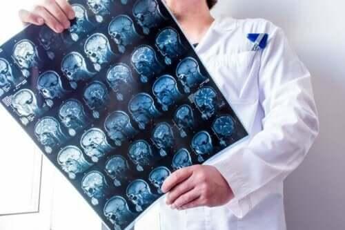 для чого потрібні мозкові оболонки