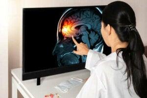 Що потрібно знати про мозкові оболонки
