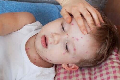Кропив'янка у дітей: способи лікування
