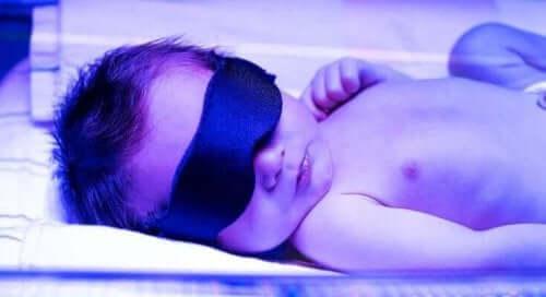 від чого буває жовтяниця у новонароджених